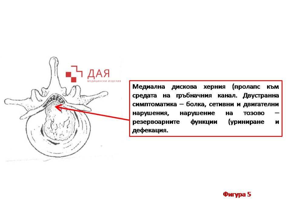 Болки в кръста и долните крайници - Дая Медицински Изделия